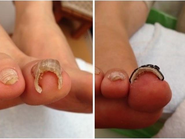 爪の乾燥が激しく縦に筋が入り二重爪